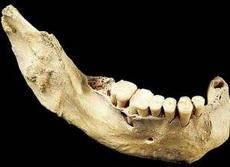 田园洞人下颌骨(附多枚牙齿)