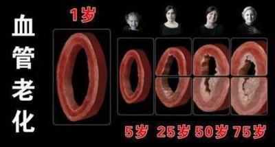 一个方法自查血管堵没堵